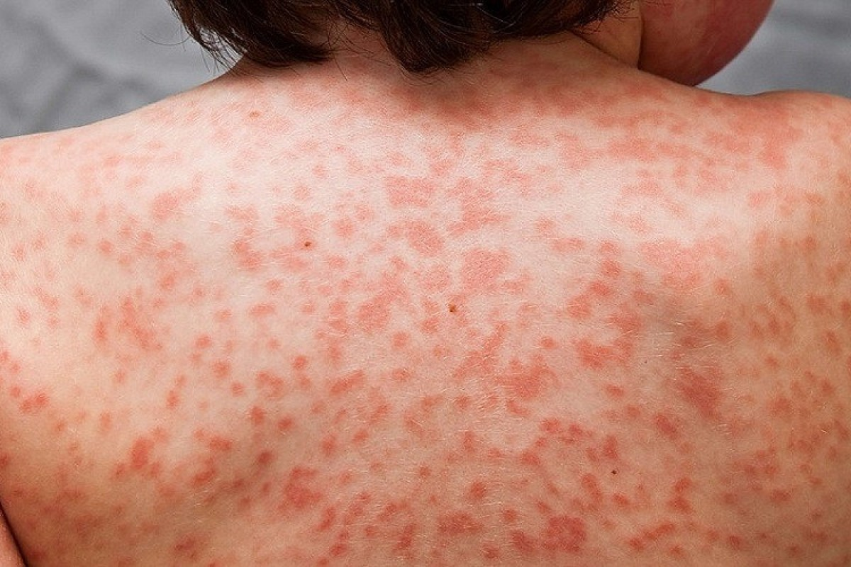What is Kawasaki disease and how is it linked to coronavirus?
