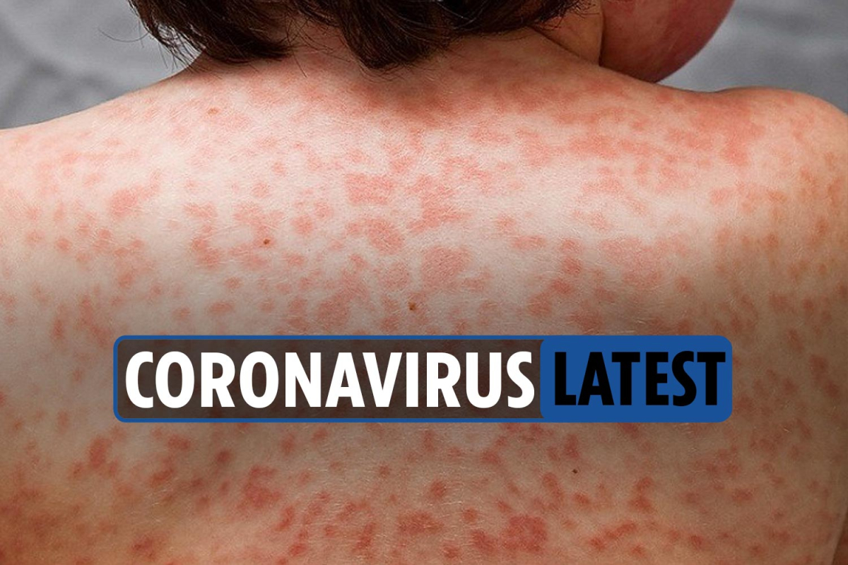 Coronavirus LIVE updates: UK deaths hit 45,053 as study shows skin rash is 'the only symptom for some'