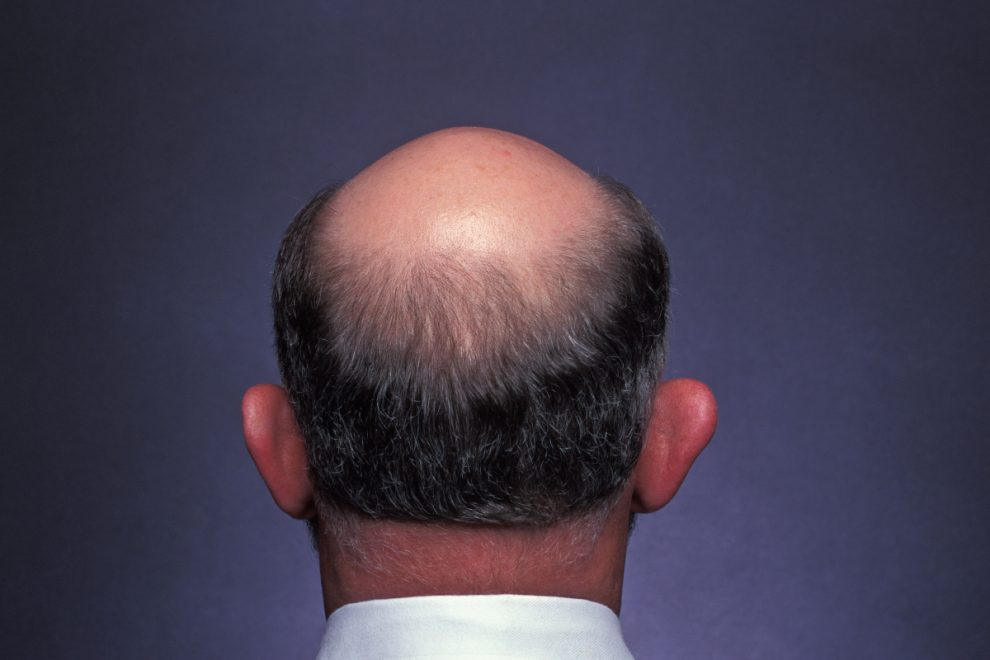 Bald men are twice as likely to suffer severe Covid, experts warn