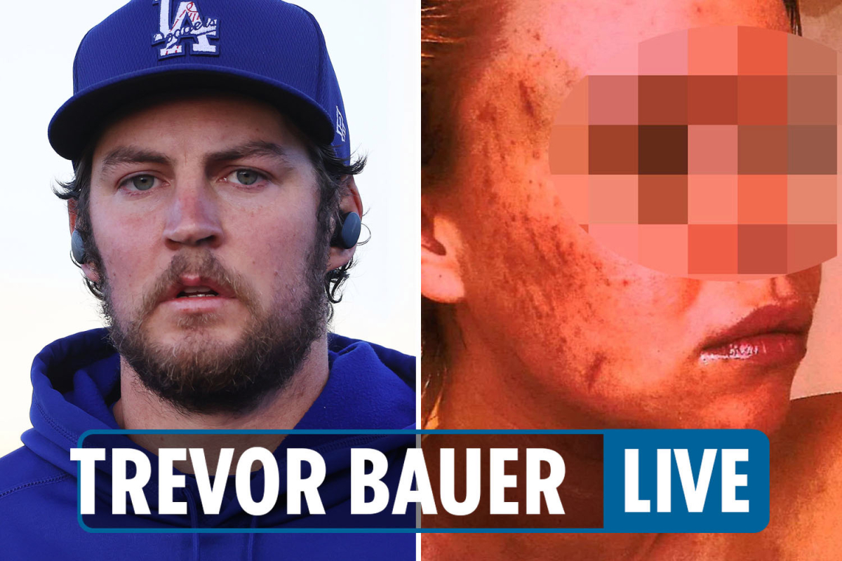 Trevor Bauer latest news – Dodgers' Max Muncy & Mookie Betts 'unfollow star' after accuser's texts and pictures seen